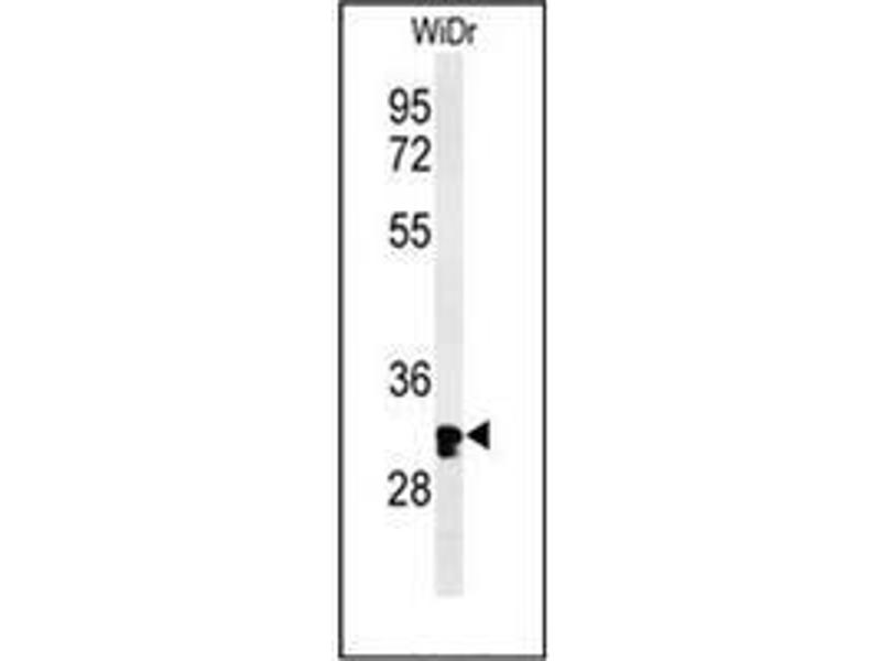 Western Blotting (WB) image for anti-Holocytochrome C Synthase (HCCS) (AA 179-209), (Middle Region) antibody (ABIN952686)