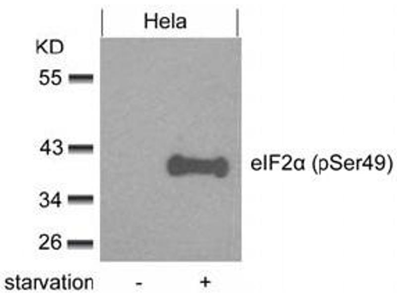 Image no. 3 for anti-Eukaryotic Translation Initiation Factor 2 Subunit 1 (EIF2S1) (pSer49) antibody (ABIN319275)