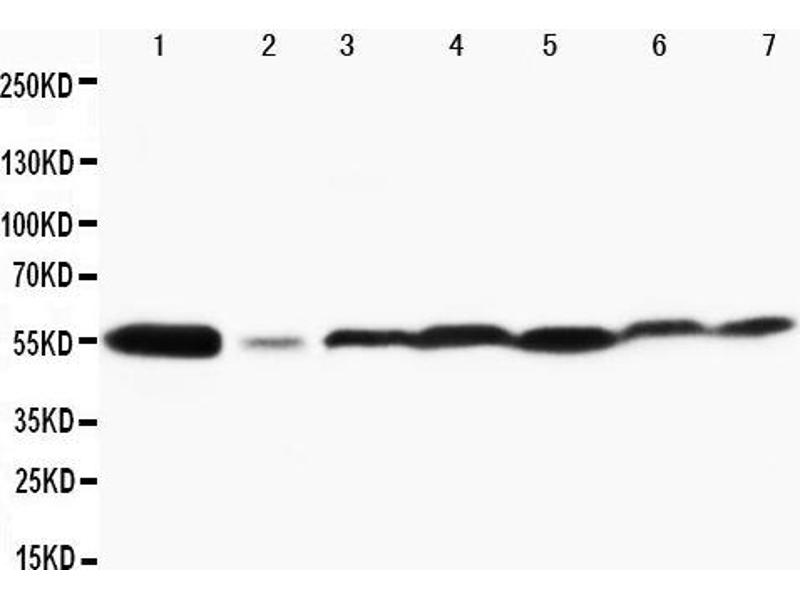 Western Blotting (WB) image for anti-Mitogen-Activated Protein Kinase 8 (MAPK8) (AA 344-363), (Middle Region) antibody (ABIN3042709)