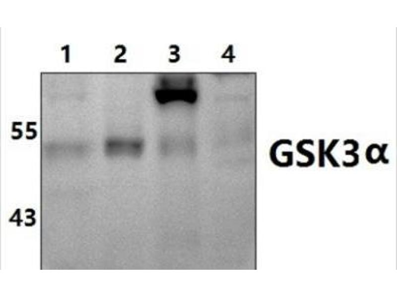 Western Blotting (WB) image for anti-Glycogen Synthase Kinase 3 alpha (GSK3a) (N-Term) antibody (ABIN407681)