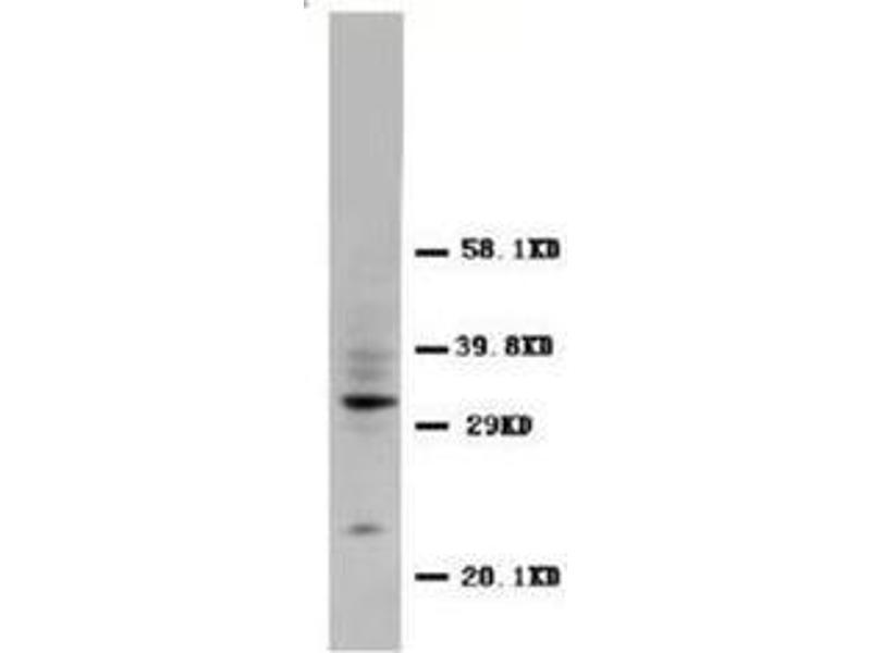 Western Blotting (WB) image for anti-CD40 Ligand (CD40LG) (N-Term) antibody (ABIN1105902)