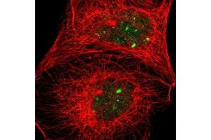 Immunofluorescence (IF) image for anti-Actinin, alpha 4 (ACTN4) antibody (ABIN4279711)