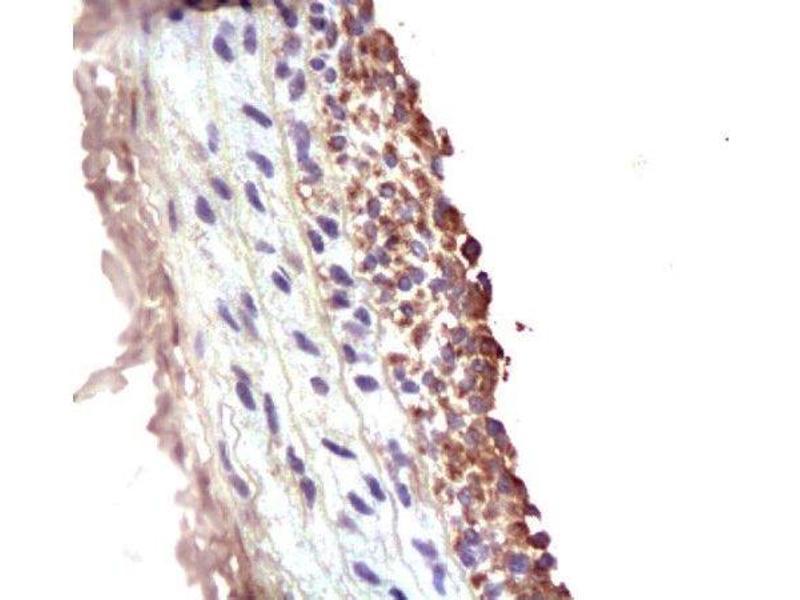 Immunohistochemistry (Paraffin-embedded Sections) (IHC (p)) image for anti-Matrix Metalloproteinase 2 (MMP2) (AA 20-70) antibody (ABIN668286)