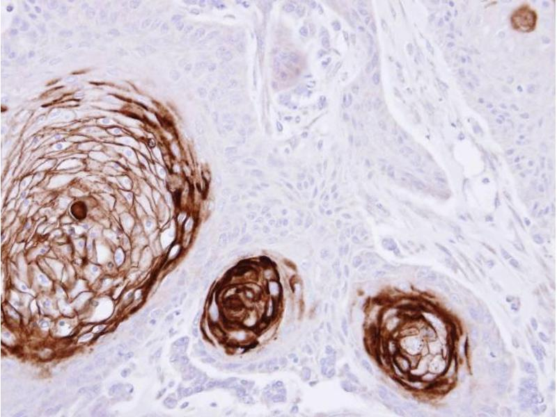 Immunohistochemistry (IHC) image for anti-Carcinoembryonic Antigen-Related Cell Adhesion Molecule 5 (CEACAM5) (AA 395-702) antibody (ABIN554805)
