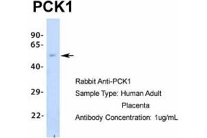 Image no. 6 for anti-phosphoenolpyruvate Carboxykinase 1 (Soluble) (PCK1) (Middle Region) antibody (ABIN2777602)
