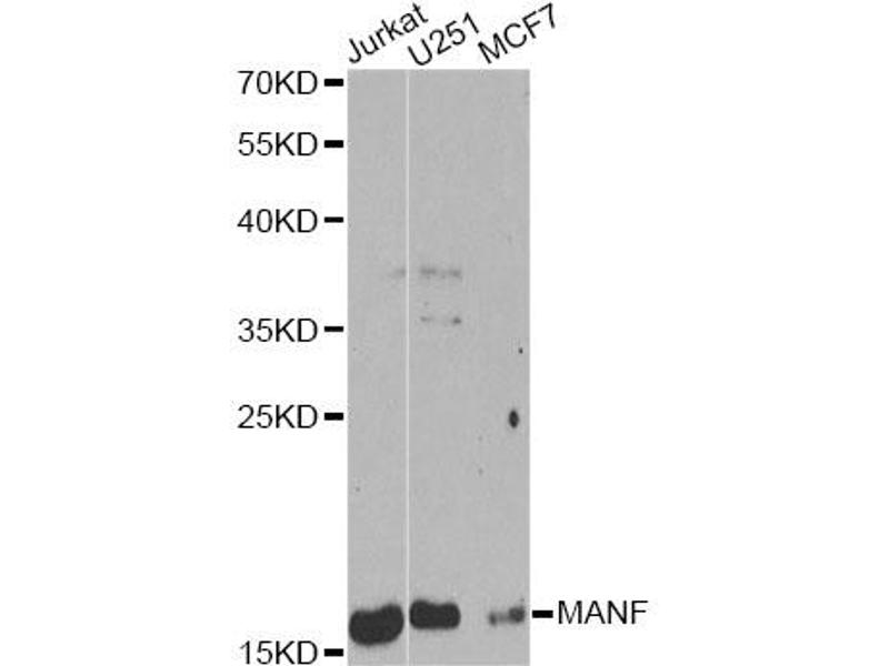 Image no. 3 for anti-Mesencephalic Astrocyte-Derived Neurotrophic Factor (MANF) antibody (ABIN6567918)