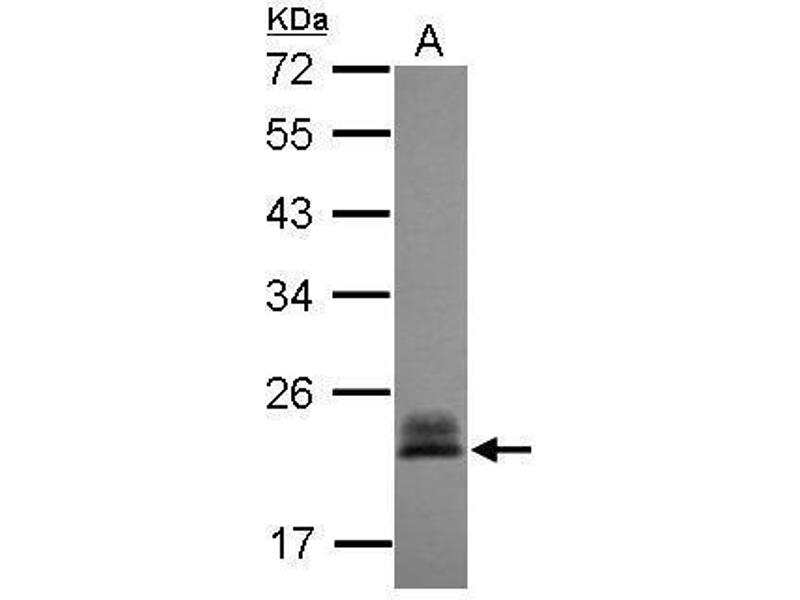 Western Blotting (WB) image for anti-Ras Homolog Gene Family, Member C (RHOC) (Center) antibody (ABIN2854791)