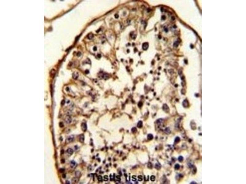 Immunohistochemistry (IHC) image for anti-Tubulin, beta (TUBB) antibody (ABIN2995285)