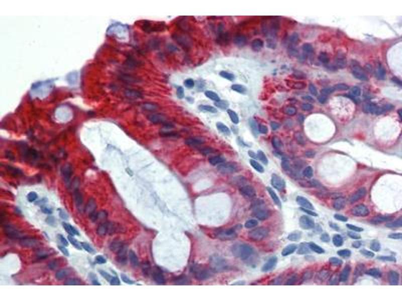 Immunohistochemistry (IHC) image for anti-Keratin 18 (KRT18) antibody (Biotin) (ABIN269268)
