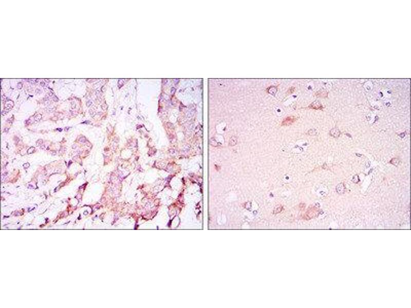 Immunohistochemistry (IHC) image for anti-3-phosphoinositide Dependent Protein Kinase-1 (PDPK1) antibody (ABIN1844865)