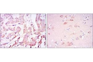Immunohistochemistry (IHC) image for anti-3-phosphoinositide Dependent Protein Kinase-1 (PDPK1) antibody (ABIN1844865)