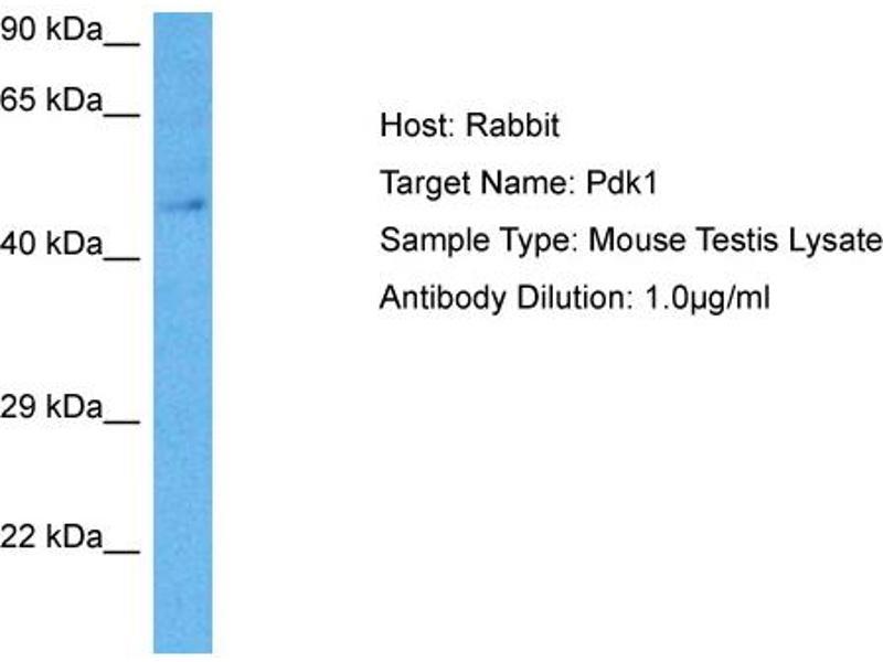 Western Blotting (WB) image for anti-3-phosphoinositide Dependent Protein Kinase-1 (PDPK1) (Middle Region) antibody (ABIN2777432)