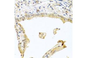 Immunohistochemistry (Paraffin-embedded Sections) (IHC (p)) image for anti-Protein Kinase C, alpha (PKCa) (C-Term) antibody (ABIN3020835)