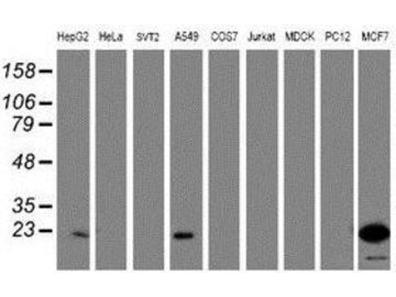 Western Blotting (WB) image for anti-PYD and CARD Domain Containing (PYCARD) antibody (ABIN4281806)
