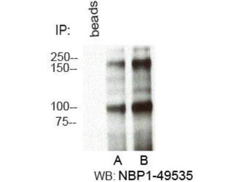 Immunoprecipitation (IP) image for anti-RBBP6 抗体 (Retinoblastoma Binding Protein 6) (AA 1600-1650) (ABIN4349510)