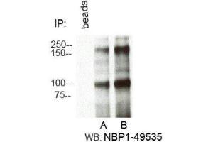Immunoprecipitation (IP) image for anti-Retinoblastoma Binding Protein 6 (RBBP6) (AA 1600-1650), (Internal Region) antibody (ABIN4349510)