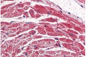 Immunohistochemistry (Paraffin-embedded Sections) (IHC (p)) image for anti-PIK3CA antibody (Phosphoinositide-3-Kinase, Catalytic, alpha Polypeptide) (AA 878-891) (ABIN337177)
