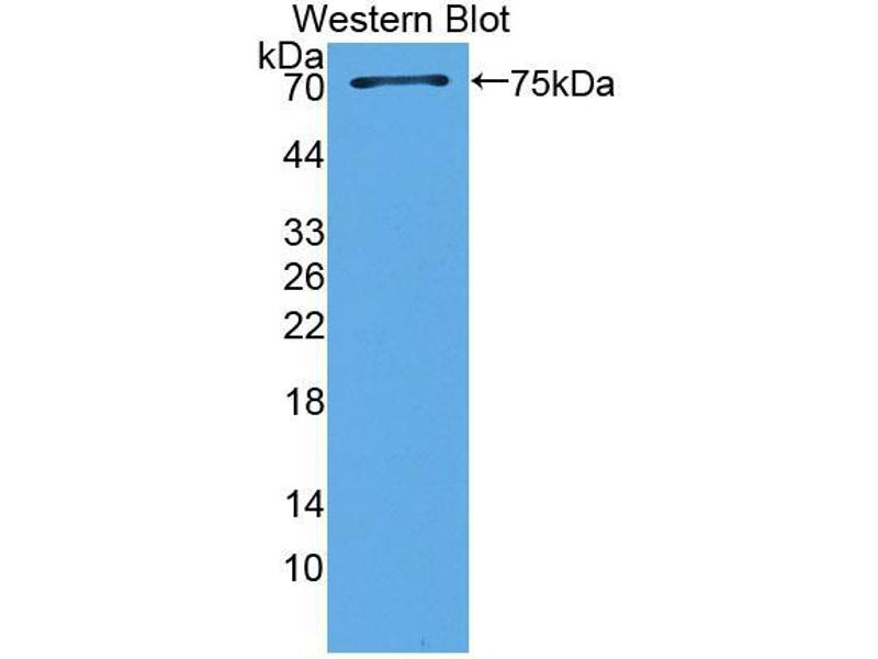 Western Blotting (WB) image for anti-Transcription Factor Dp-1 (TFDP1) (AA 6-410) antibody (ABIN5014434)