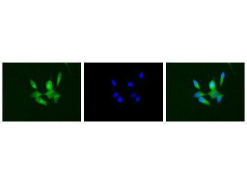 Immunofluorescence (IF) image for anti-CD40 Molecule, TNF Receptor Superfamily Member 5 (CD40) (Extracellular Domain) antibody (ABIN2451933)