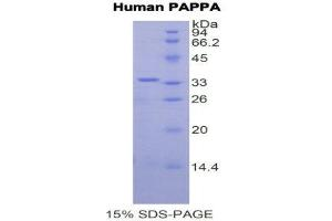 SDS-PAGE (SDS) image for Pregnancy-Associated Plasma Protein A, Pappalysin 1 (PAPPA) (AA 1270-1558) protein (His tag) (ABIN2121934)