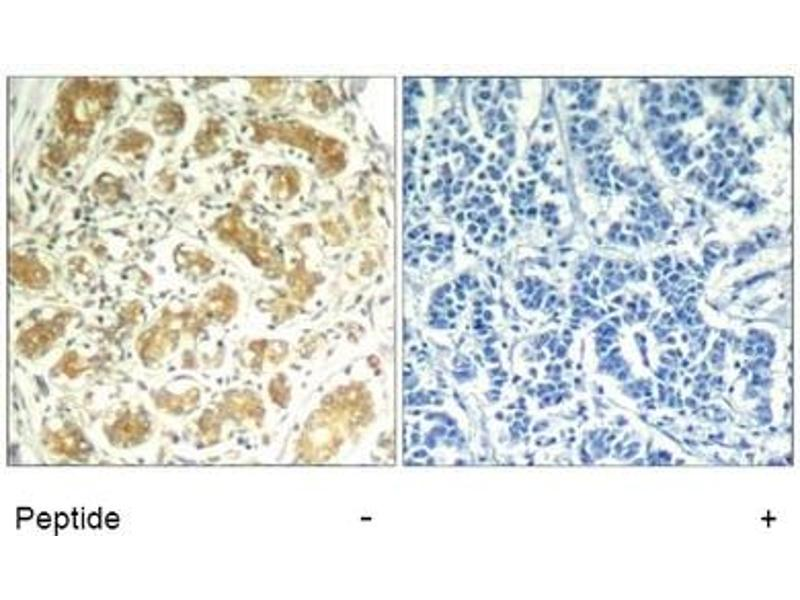 Image no. 1 for anti-Spleen tyrosine Kinase (SYK) (AA 321-325) antibody (ABIN319416)