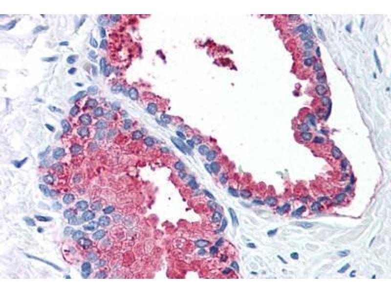 Immunohistochemistry (IHC) image for anti-Lysyl Oxidase-Like 2 (LOXL2) (Internal Region) antibody (ABIN1049011)