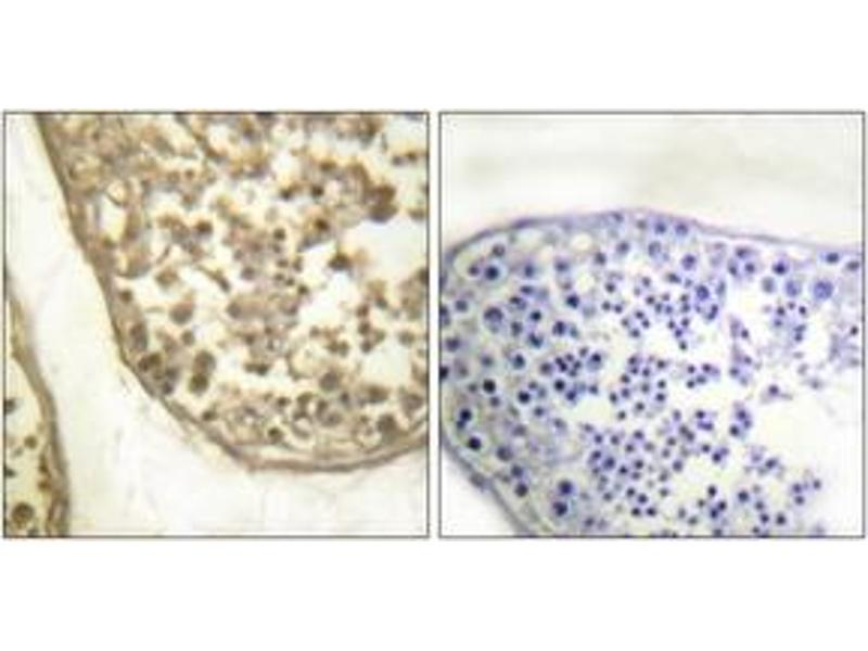 Immunohistochemistry (IHC) image for anti-C-JUN antibody (Jun Proto-Oncogene) (pThr231) (ABIN1531557)