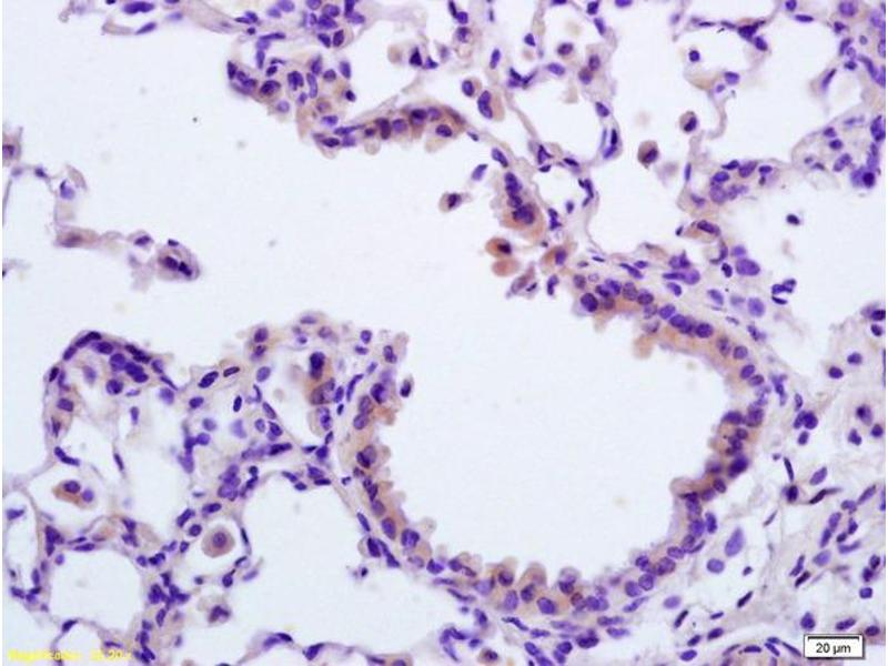 Immunohistochemistry (IHC) image for anti-Apoptotic Peptidase Activating Factor 1 (APAF1) (AA 3-44), (N-Term) antibody (ABIN724310)