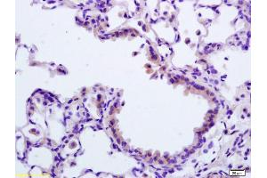 Image no. 3 for anti-Apoptotic Peptidase Activating Factor 1 (APAF1) (AA 3-44), (N-Term) antibody (ABIN724310)