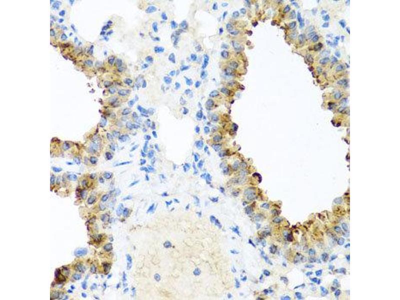 Immunohistochemistry (IHC) image for anti-Ninein (GSK3B Interacting Protein) (NIN) antibody (ABIN2737251)