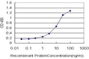 Image no. 4 for anti-NAD(P) Dependent Steroid Dehydrogenase-Like (NSDHL) (AA 1-110) antibody (ABIN565501)