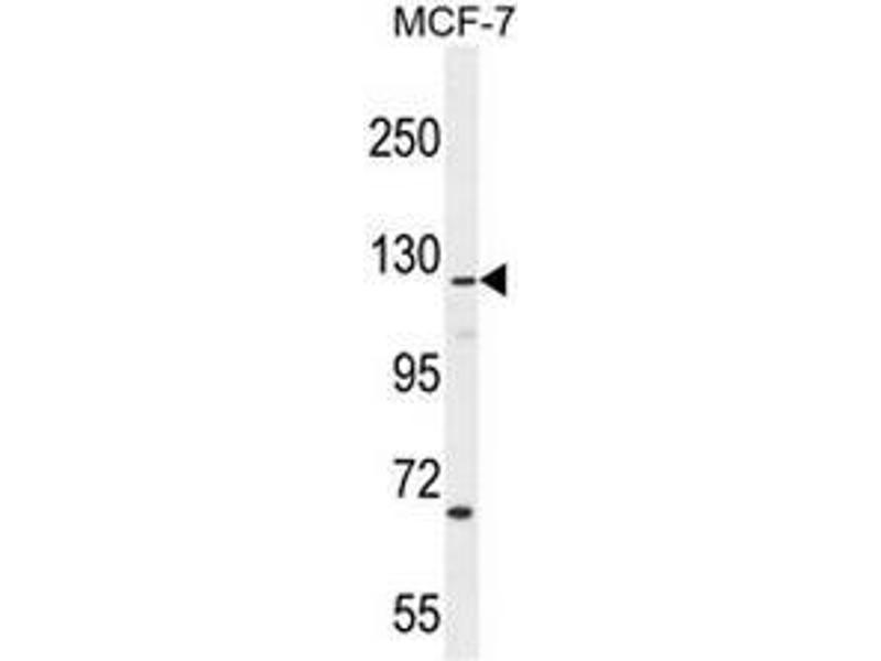 Western Blotting (WB) image for anti-CASK Interacting Protein 2 (CASKIN2) (AA 714-741), (Middle Region) antibody (ABIN951050)