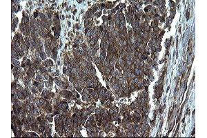 Immunohistochemistry (IHC) image for anti-Programmed Cell Death 6 Interacting Protein (PDCD6IP) antibody (ABIN4279390)
