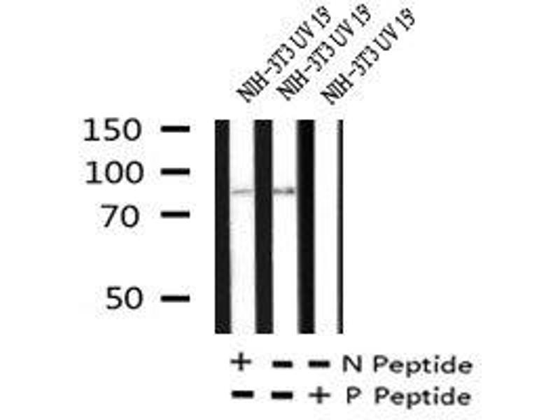 Image no. 5 for anti-Protein Kinase C, alpha (PKCa) (pTyr365) antibody (ABIN6269891)