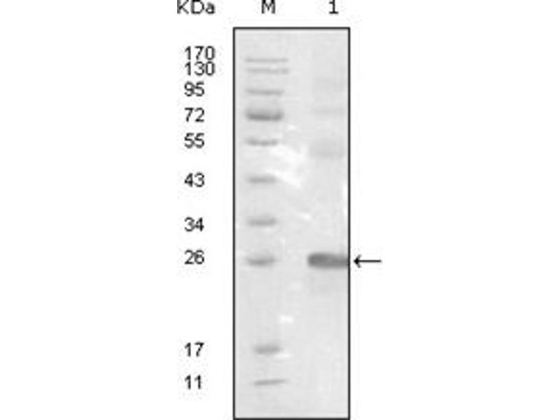 Western Blotting (WB) image for anti-EPH Receptor B3 antibody (EPHB3) (ABIN1107111)