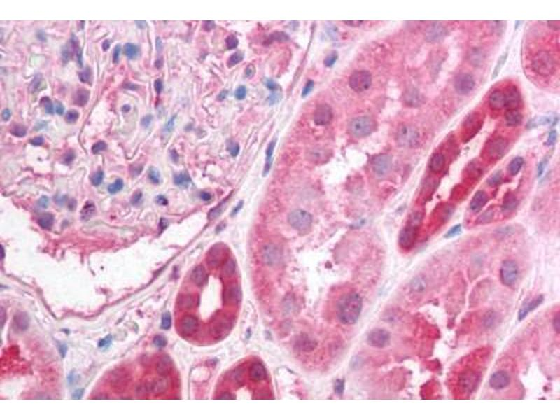 Immunohistochemistry (Paraffin-embedded Sections) (IHC (p)) image for anti-Protein Phosphatase 2, Regulatory Subunit A, alpha (PPP2R1A) (AA 7-19) antibody (ABIN214614)