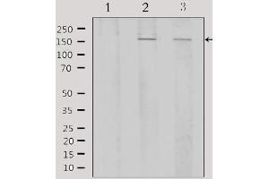 Image no. 4 for anti-Activating Transcription Factor 7 (AFT7) antibody (ABIN6256915)