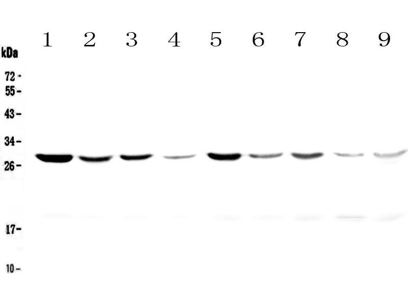 Image no. 2 for anti-Tyrosine 3-Monooxygenase/tryptophan 5-Monooxygenase Activation Protein, zeta Polypeptide (YWHAZ) antibody (ABIN5693157)