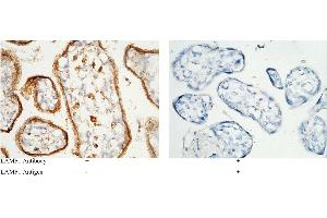 Image no. 3 for anti-Lysosomal-Associated Membrane Protein 1 (LAMP1) (AA 1-382), (Extracellular Domain) antibody (ABIN1998479)