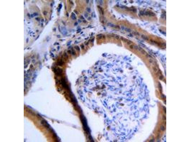 Immunohistochemistry (IHC) image for anti-Vasodilator-Stimulated phosphoprotein (VASP) (Center) antibody (ABIN2707237)