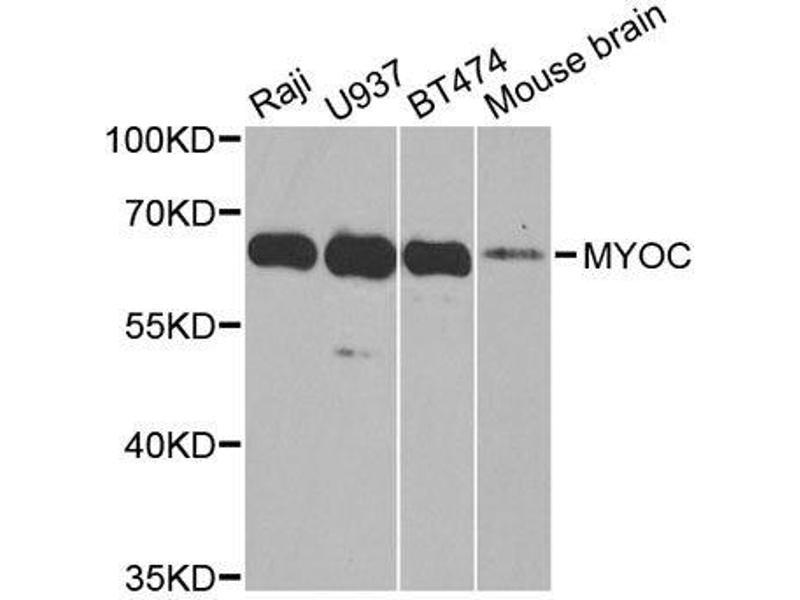 Western Blotting (WB) image for anti-Myocilin (MYOC) antibody (ABIN3022197)