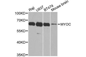 Image no. 2 for anti-Myocilin (MYOC) antibody (ABIN3022197)