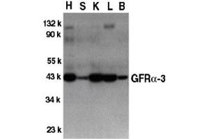 Image no. 1 for anti-GDNF Family Receptor alpha 3 (GFRA3) (Middle Region) antibody (ABIN1030939)