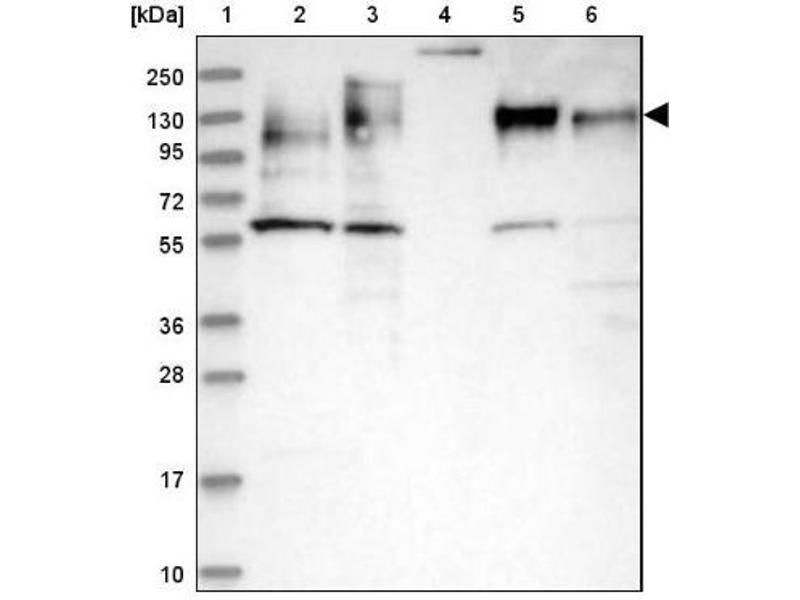 Western Blotting (WB) image for anti-Microtubule-Associated Protein 4 (MAP4) antibody (ABIN4332659)