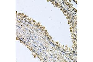 Image no. 2 for anti-Mediator of Cell Motility 1 (MEMO1) antibody (ABIN6571854)