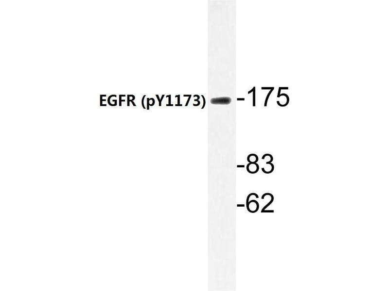 Western Blotting (WB) image for anti-EGFR antibody (Epidermal Growth Factor Receptor) (pTyr1197) (ABIN498727)