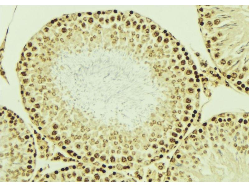 Immunohistochemistry (IHC) image for anti-Ligase IV, DNA, ATP-Dependent (LIG4) antibody (ABIN6262967)