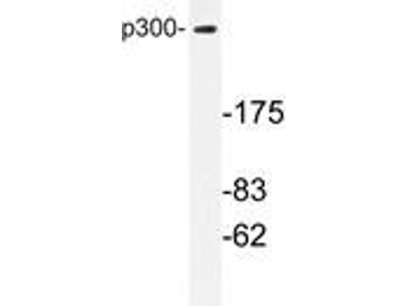 Western Blotting (WB) image for anti-p300 antibody (E1A Binding Protein P300) (ABIN498122)
