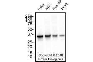 Western Blotting (WB) image for anti-APEX Nuclease (Multifunctional DNA Repair Enzyme) 1 (APEX1) antibody (ABIN4889971)