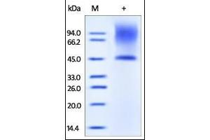 Image no. 1 for Decorin (DCN) (AA 17-359) protein (His tag) (ABIN2180962)